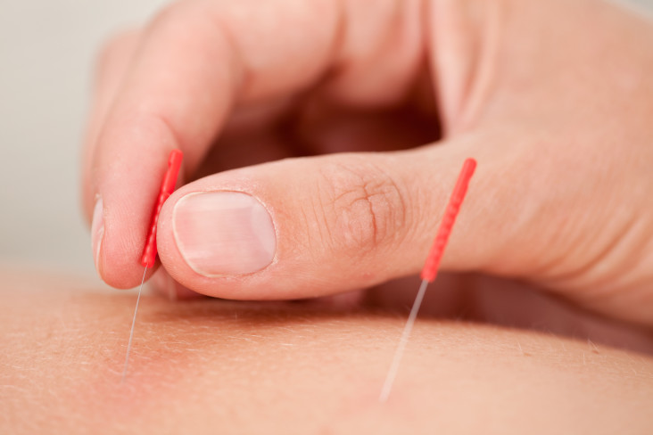 Macro detail of a hand stimulating an acupuncture needle on the back of a patient