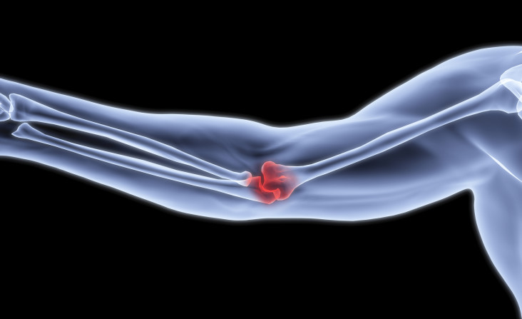 Man's arm under x-rays. The joint is highlighted in red.